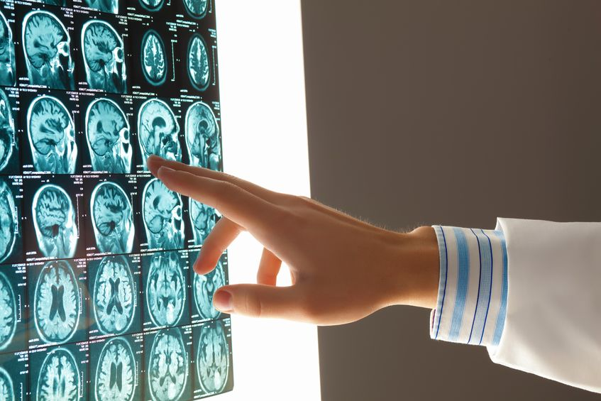Lifelong Recovery from Neurological Injury